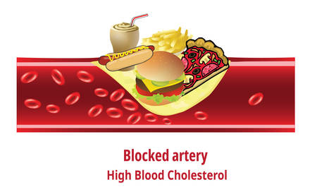 High blood cholesterol, Junk Food, fat stuck in the blood artery
