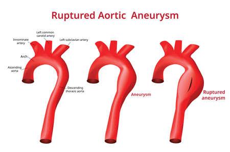Ruptured Aortic Aneurysm, Aortic Disease, Vector