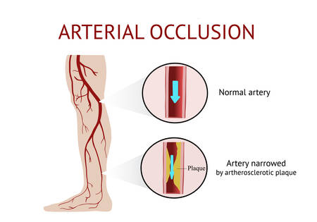 Arterial occlusion, Acute arterial occlusion, Atherosclerosis, Cramp, Vector Illustration Illustration