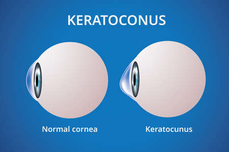 Eye cornea and keratoconus, eye disorder, medical illustration vector 스톡 콘텐츠 - 133804948