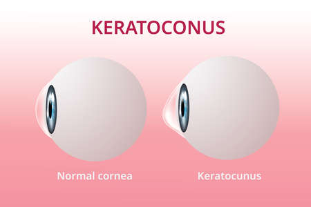 Eye cornea and keratoconus, eye disorder, medical illustration vector