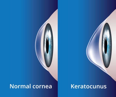 Eye cornea and keratoconus, eye disorder, medical illustration vector