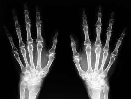 thumb x ray: x-ray of hand