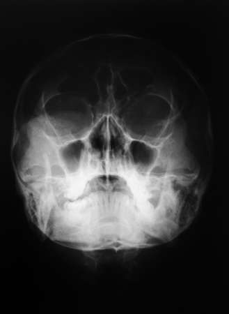 radiological: X-ray, skull, Watersview techniqe, Fracture mandible Stock Photo