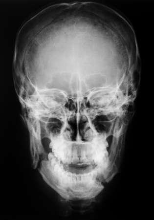 mandible: X-ray, skull, Fracture mandible