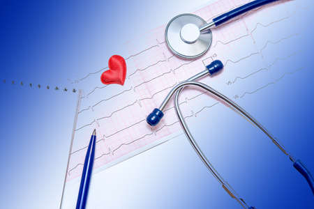 Close-up of healthy electrocardiogram results. A tool for studying breathing and heartbeat. Blue doctor's stethoscope. The concept of maintaining a healthy heart.