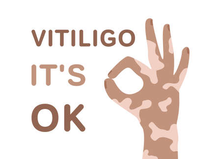Vitiligo poster. Human hand and text. Vitiligo it's ok. Color flat illustration of body positive, self love. Isolated vector image on white background