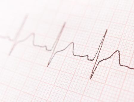 Cardiogram. ECG shows the heart beat Stock Photo - 18423619