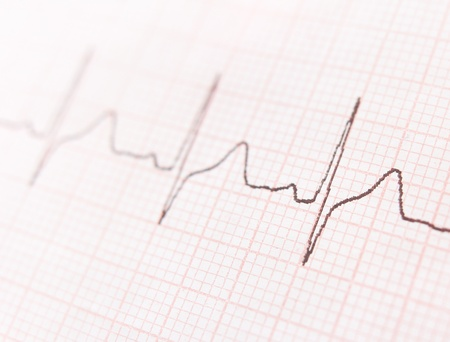 Cardiogram. ECG shows the heart beat Stock Photo - 18423619