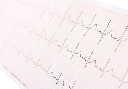 oscillate: cardiogram Stock Photo