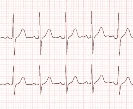 ecg: cardiogram on the background grid