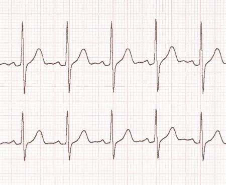 ritme: cardiogram op de achtergrond raster Stockfoto