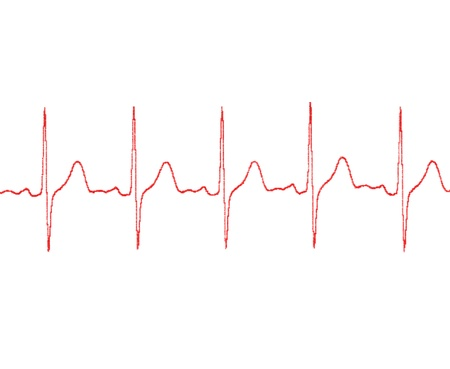 puls: cardiogram na białym tle
