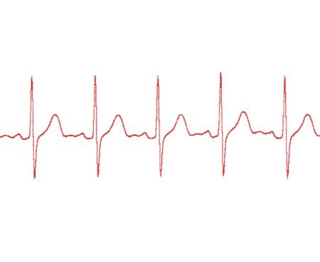 battement du coeur: cardiogramme sur un fond blanc