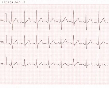 oscillate: Cardiogram  ECG shows the heart beat