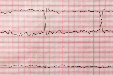 Reading a cardiogram. Heart rate graph per ecg