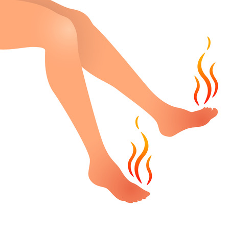 swell: Vector illustration of woman feet hurting or swollen