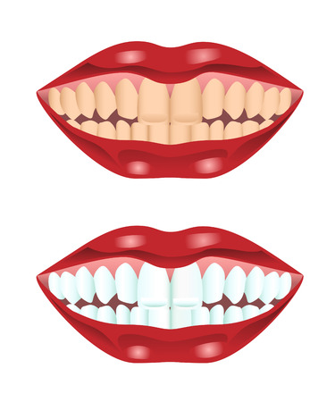 whitening: Illustration of teeth before and after whitening