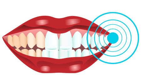 Illustration of teeth being whitened Vector