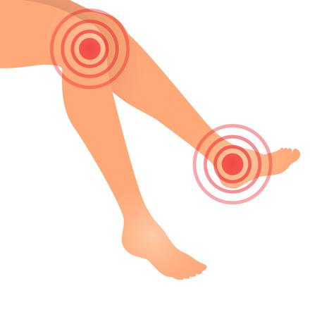 Ilustración del vector de la pierna de las articulaciones dolor, suplemento médica o concepto de la medicina