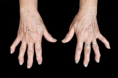 demonstrative: Hands of the old woman on a black background