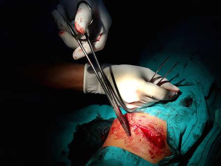 herida: puntada operaci�n de heridas