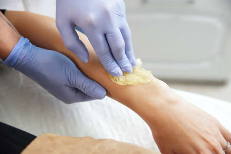 Esteticista quita el pelo de la mano de una mujer. Azucarado. La depilación con una pasta de azúcar especial tiene muchas ventajas sobre la depilación con cera. Foto de archivo
