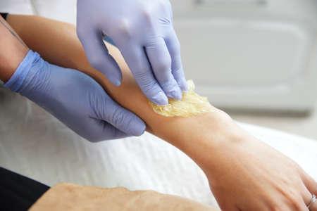 L'estetista rimuove i capelli dalla mano di una donna. Sugaring. La depilazione con una speciale pasta di zucchero ha molti vantaggi rispetto alla depilazione con cera. Archivio Fotografico