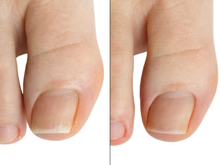 Deleting cuticle nail beauty salon befor and after. Isolated on white background.