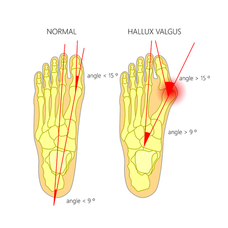 Illustration of the normal foot and hallux valgus with indicating of the first metatarsophalangeal and the first-second intermetatarsal angles.