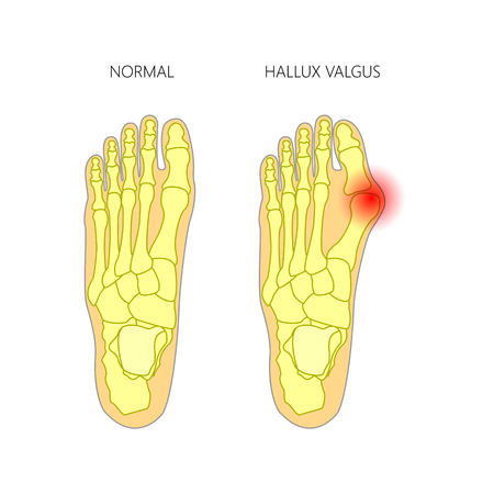 proximal: Illustration of the normal foot and valgus deviation of the first toe.  Used: gradient, transparency, blend mode.