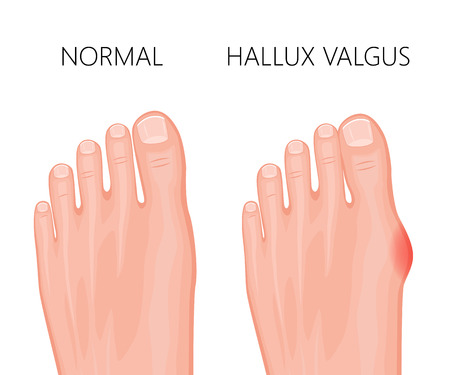 Human foot deformity hallux valgus. Used: gradient, transparency, blend mode.