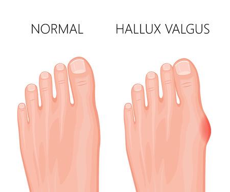 Human foot deformity hallux valgus. Used: gradient, transparency, blend mode.