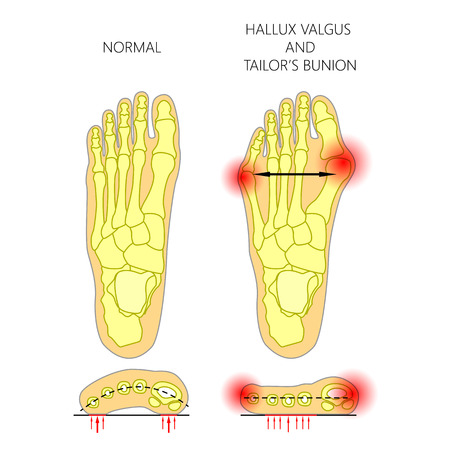Deviation of the first and the fifth metatarsals,  transverse flatfoot. Used: gradient, transparency, blend mode.