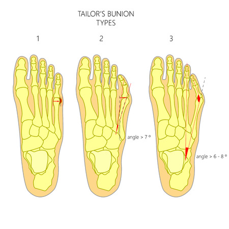 Diagnosis of the tailor's bunion with angles of deviation. Illustration