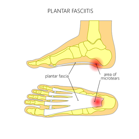 Plantar fasciitis.  Used: gradient, transparency, Blend mode.