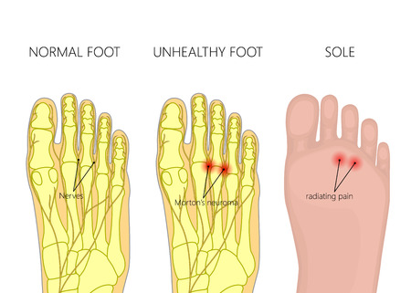 Morton's neuroma. Used: gradient, blend mode.