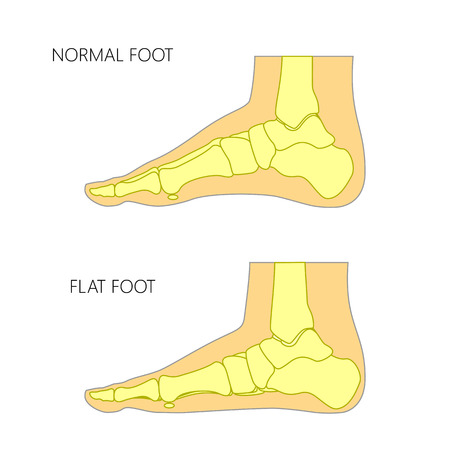 Skeletal illustration of a normal foot and a flat foot.