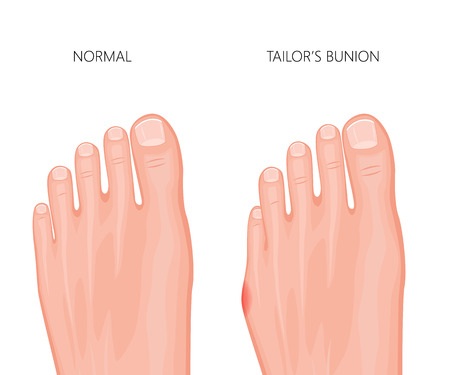 Illustration of the tailors bunion of the human foot.
