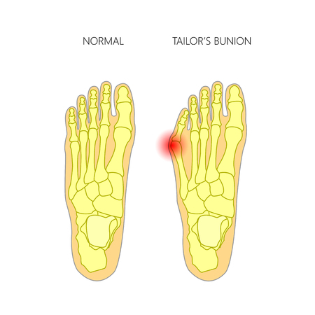 Vector illustration of the tailors bunion. Used: gradient, transparency; blend mode.