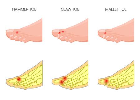 Illustratie van de vervorming van tenen. Gebruikt: gradiënt, transparantie, mengmodus. Vector Illustratie
