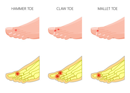 Illustration of the deformation of toes. Used: gradient, transparency, blend mode. Vettoriali