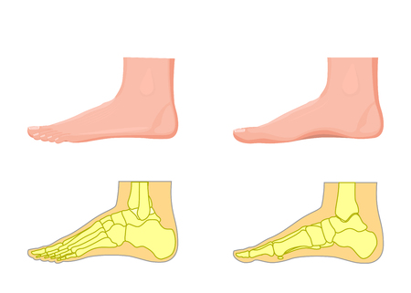 lateral view: Illustration of a skeletal and external view of an ankle.