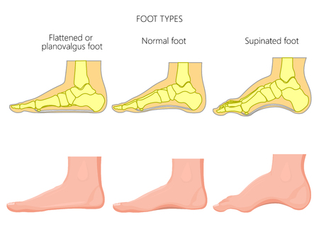 Foot types. External and skeletal views.