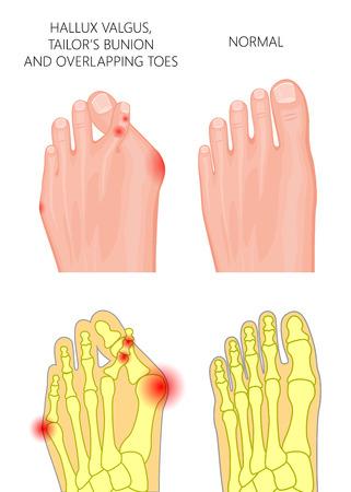 Ilustración del hallux valgus, juanete de sastre y dedos solapados o desplazados. Utilizado: gradiente, transparencia.