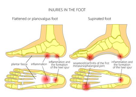 Lesiones en el pie: fascitis plantar, estiramiento del talón y sesamoidit. Utilizado: gradiente, transparencia, modo de mezcla. Ilustración de vector