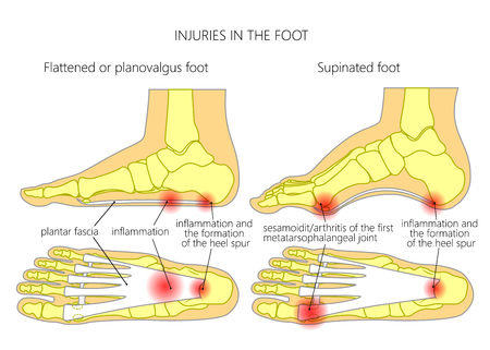 Injuries in the foot: plantar fasciitis, heel spur and sesamoidit. Used: gradient, transparency, blend mode.