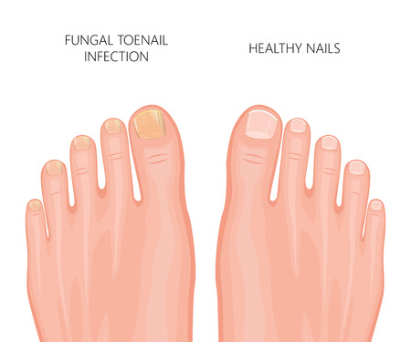 Illustration of toe nail fungal infection. Used: gradient, transparency, blend mode.