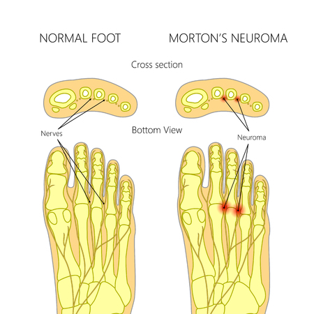 neuropathy: Mortons neuroma with cross section.  Used: gradient, blend mode.