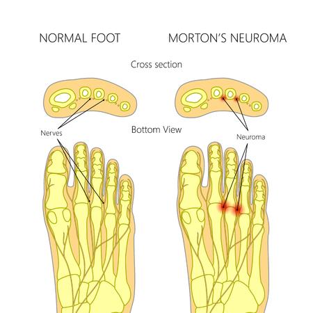 Morton's neuroom met doorsnede. Gebruikt: verloop, mengmodus. Vector Illustratie